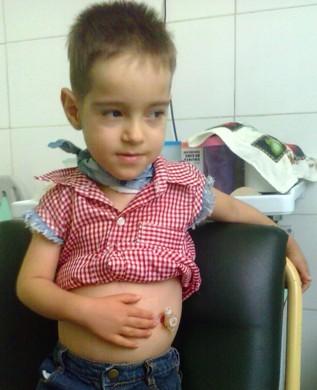 20170428042635-compleja-intervencion-quirurgica-en-hospital-pediatrico-de-camaguey.jpg